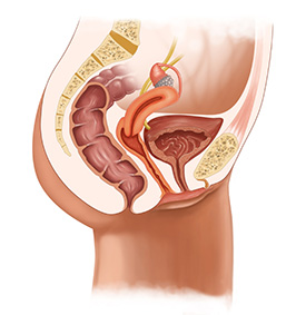 Pelvic Organ Prolapse Treatment in Port Chester, NY